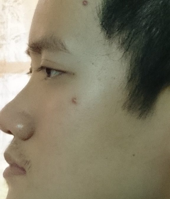 Are some people more prone to acne?